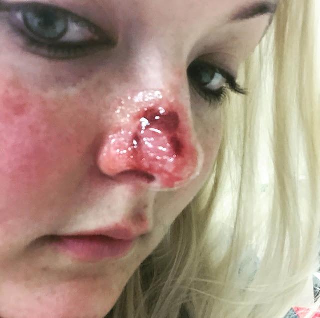 سرطان الجلد في الوجه