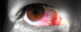 Penyakit Mata Iridosiklitis