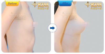 Nâng ngực nội soi tại KIM Hospital mang lại khuôn ngực đẹp quyến rũ và cân đối