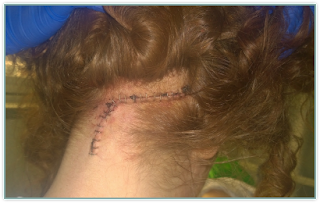 Brain Surgery Craniotomy Scar