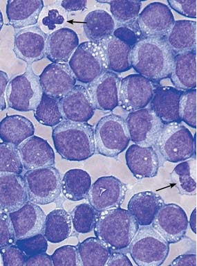 Homogeneous infiltration of the bone marrow by monoblasts (M5 a)