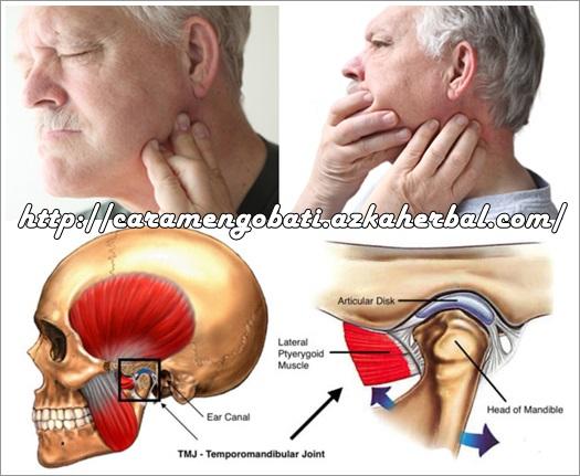 Sakit Rahang Di Bawah Telinga ? Begini Cara Mengatasinya