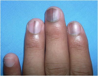 How to find vitamin deficiency through nail?