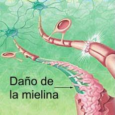 daño en la mielina