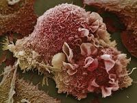 Waspada, 5 Hal di Rumah Anda Yang Boleh Sebabkan Kanser