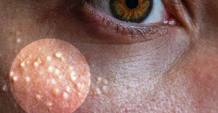 Remove Milia (Miliary Acne) From Your Face With These Natural Remedies