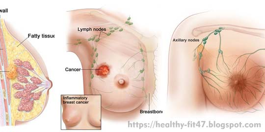 Symptoms and Characteristics of Breast Cancer