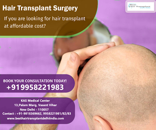#scalpreduction, #prptreatment, #besthairtransplant, #hairsurgeon, #FUE, #FUT, #moustaches, #mesotherapy, #hairreplacmentcost