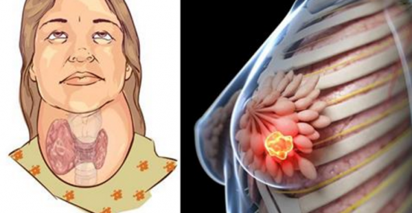 "This ""Healthy"" Drink Destroys Your Thyroid & Is Linked To Breast Cancer!"
