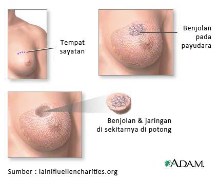 Penyebab dan gejala kanker payudara1