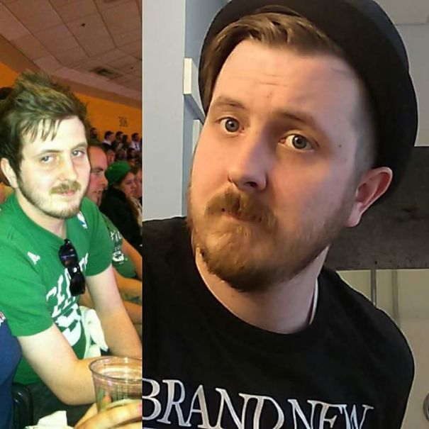 10+ Before-And-After Pics Show What Happens When You Stop Drinking - 18 Months