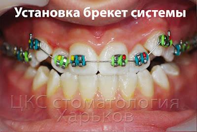 Установка брекет системы и начало расширения челюсти