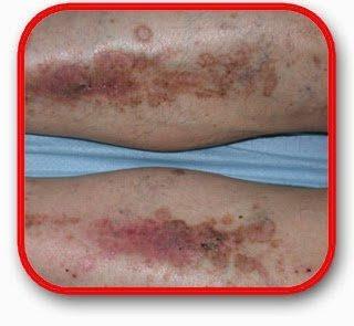 Gejala Penyakit Eksim Atau Dermatitis