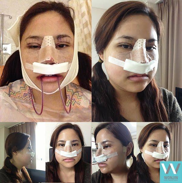 짱이뻐! - My Face Has Gotten Smaller After Korean Face Contouring Surgery