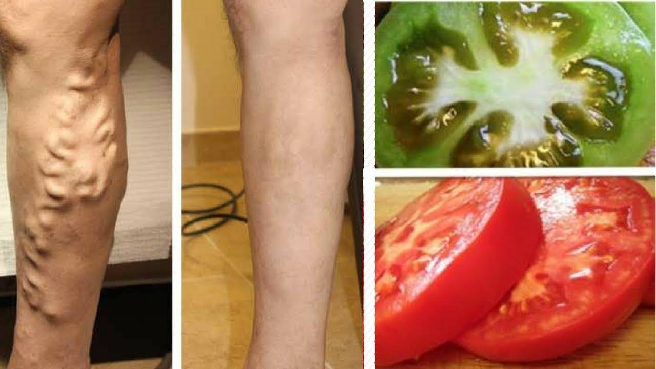 Varicose, Tomato