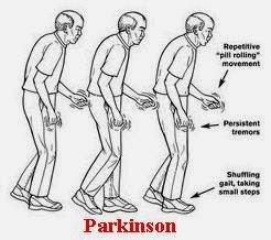 Obat Parkinson