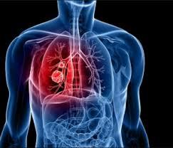 Penyakit Paru-Paru Dan Cara Mencegahnya