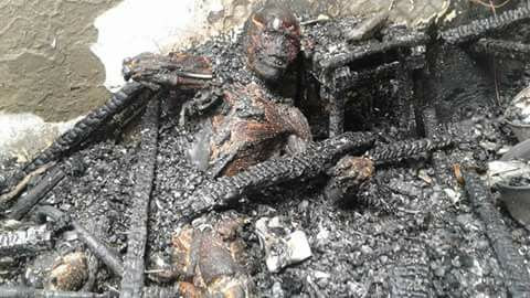 Graphic Photo Of A Badly Burnt Man.