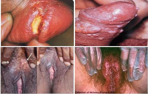 Nama Obat Penyakit Sipilis Di Apotik