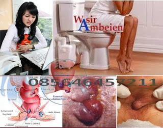 Obat Ambeien dari Tanaman Obat Nusantara
