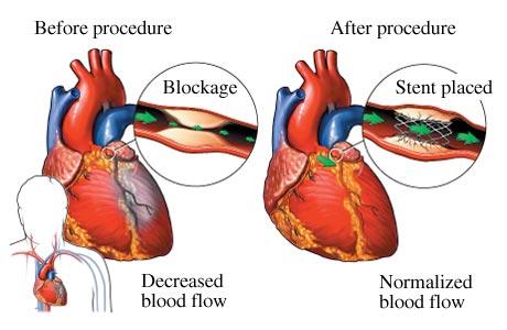 http://cardio-chennai.billrothhospitals.com/coronary-angioplasty-and-stenting/
