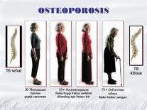 Pencuri Tulang Bernama Osteoporosis