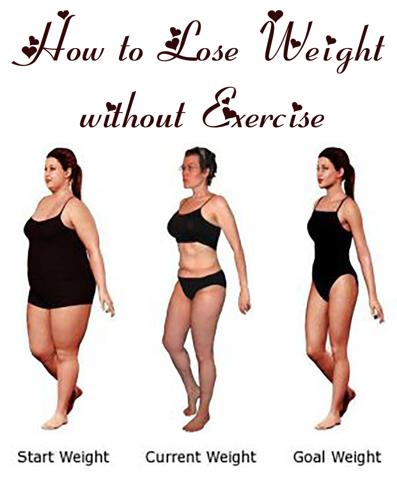 Weight loss surgery in parker co weight loss surgery in parker co image 9 ccuart Images