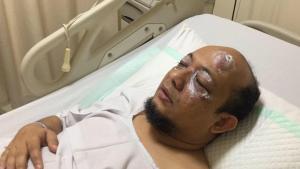 Para Pimpinan KPK Dorong Dibentuknya TGPF Novel Baswedan