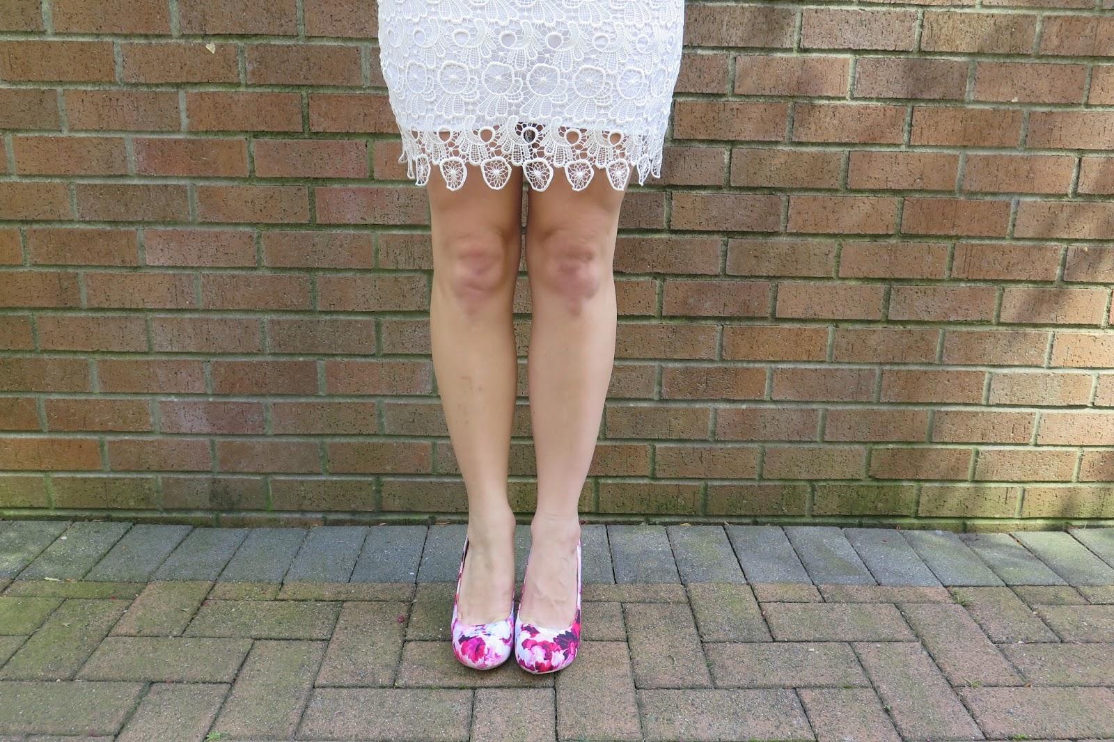 floral-print-shoes