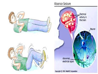 Diagnosis Terjadinya Penyakit Epilepsi