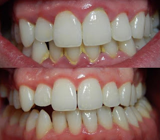 A gingivitis has a plaque buildup tartar which requires professional intervention to be removed thoroughly pictures