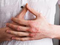 Cara Menghilangkan Gatal Secara Alami Dan Cepat Di Kaki / Tangan