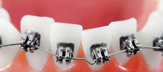 اسعار تقويم الاسنان في الرياض