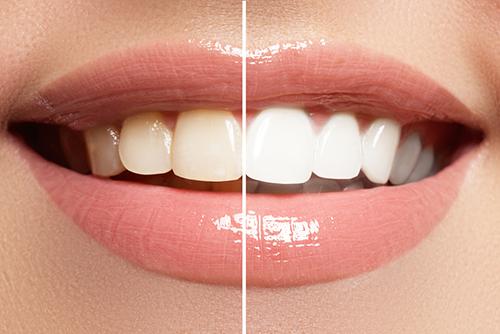 اسرع 3 طرق لتبييض الاسنان