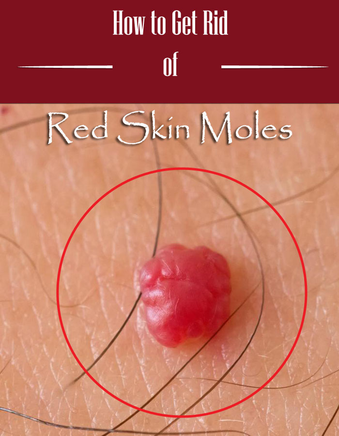 How to Get Rid of Red Skin Moles