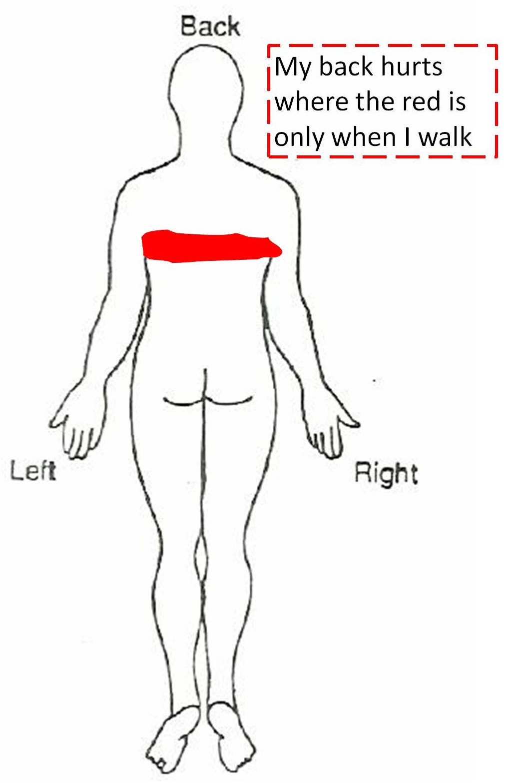 Kidney Pain Location Diagram Wiring