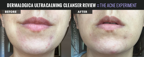 Dermalogica Ultracalming Cleanser Before & After :: The Acne Experiment