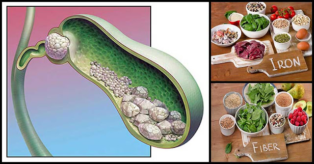 Foods That Can Help Prevent The Formation Of Gallbladder Stones