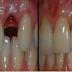 Amazing Discovery: Goodbye Dental Implants, Here's How!