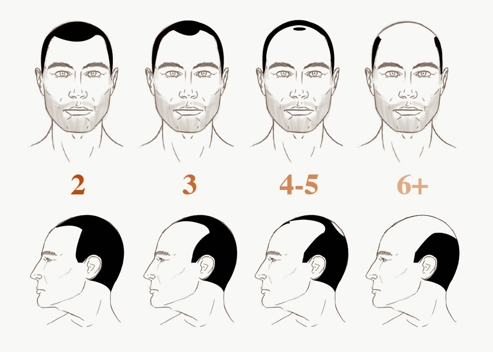 How Bald Are You The Male Grooming Review