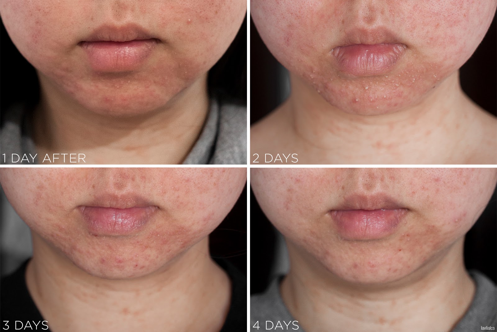 lavlilacs skin allergy - reaction progression and healing