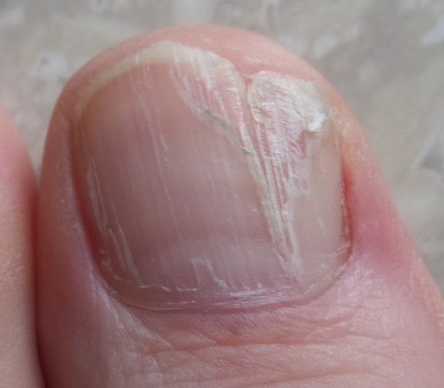 toenail with damaged matrix