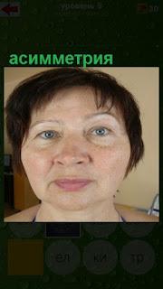 асимметрия на лице у женщины с веснушками