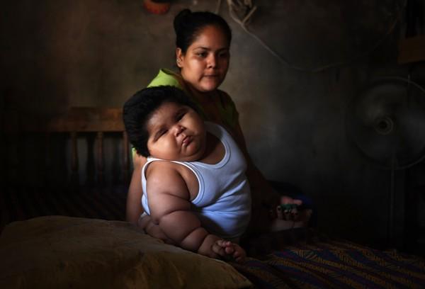 Bebê de 28 quilos intriga médicos no México