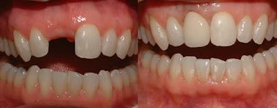 trám răng bị gãy có được không -5
