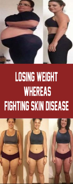 Losing Weight As a By-Product?