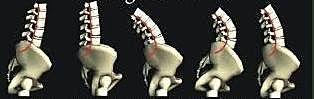 脊椎側彎, 脊椎側彎檢查, 姿勢體態矯正, 脊椎側彎怎麼看