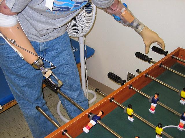 Prótesis-de-brazo-actividades-vida-diaria