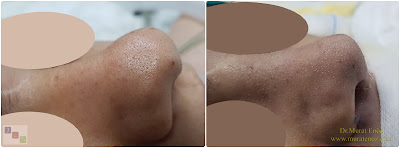 Bayan Burun Estetiği  Burun Estetiği Bayanda - Bayanlarda Burun Estetiği - Bayan Burun Estetiği İstanbul - Eğri Burun Ameliyatı - C Burun Estetiği - Asimetrik Burun Estetiği - Female Nose Aesthetic Surgery - Nose Jobs For Women - Nose Reshaping for Women - Female Rhinoplasty Istanbul - Nose Job Surgery for Women - Women's Rhinoplasty - Nose Aesthetic Surgery For Women - Female Rhinoplasty Surgery in Istanbul - Female Rhinoplasty Surgery in Turkey - C Burun - Crooked Nose - Deviated Nose - Twisted Nose - Deflected Nose - Asymmetric Nose - Scoliotic Nose - Rhinoplasty in Istanbul - Rhinoplasty Istanbul - Rhinoplasty in Turkey - Rhinoplasty Turkey - Nose Job Istanbul - Nose Job Turkey
