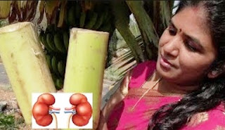 HOME REMEDY FOR KIDNEY STONES   GALL BLADDER STONE   COOKING PLANTAIN STEM